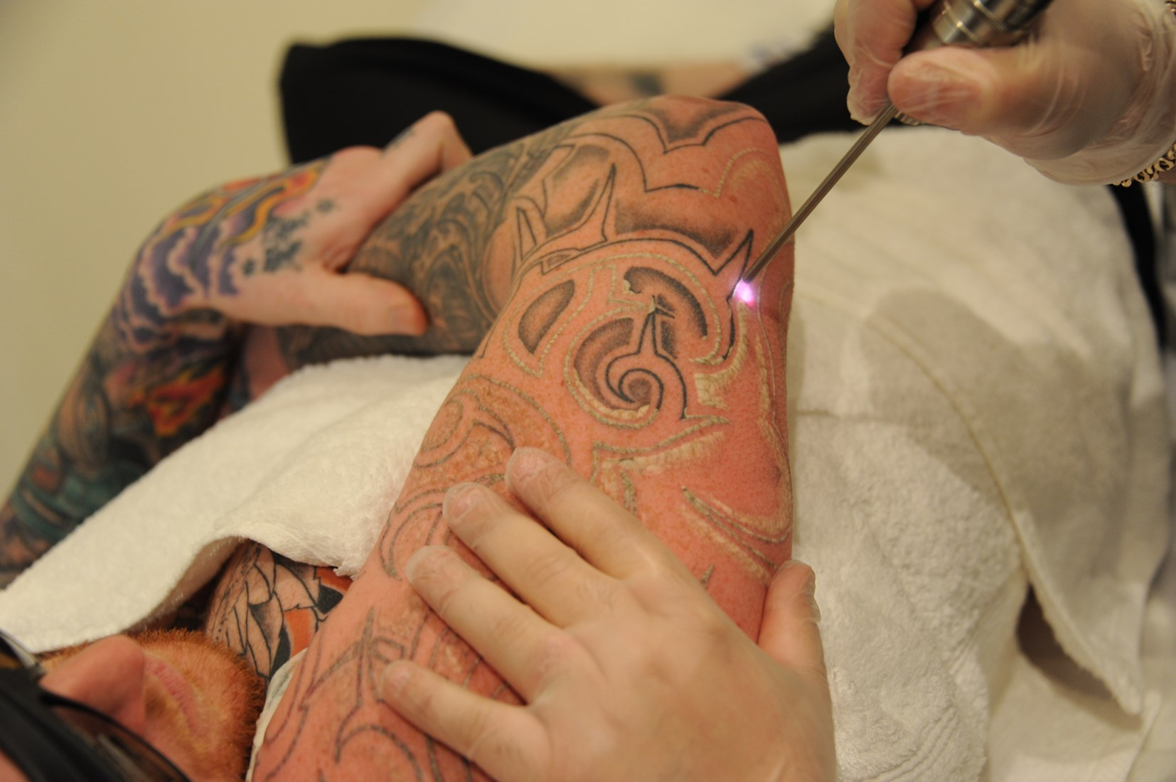 Laser Tattoo Removal course - 2 Day Workshop | Fleming Laser