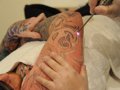 Laser Tattoo Removal course - 2 Day Workshop